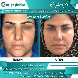 nose surgery (9)