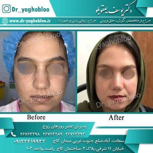nose surgery (90)
