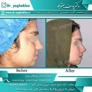 nose surgery (92) (1)