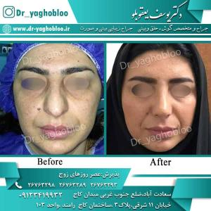 nose surgery (94)