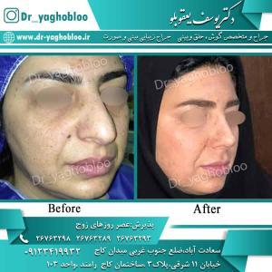 nose surgery (95)