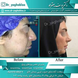 nose surgery (96)