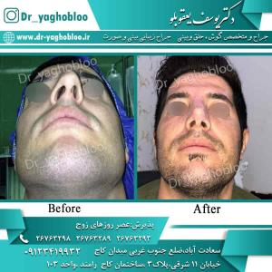 nose surgery (98) (1)