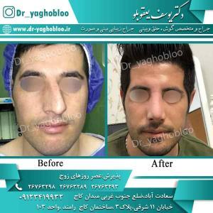 nose surgery (99)